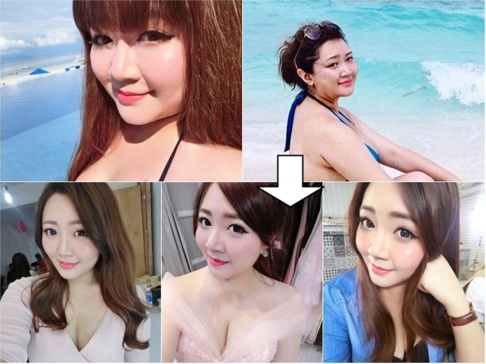 不動刀小臉改造part2、消除疲倦淚溝@永欣診所