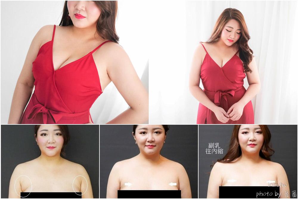 副乳+前側手臂顯微套管抽脂全紀錄@麗波永康國際診所