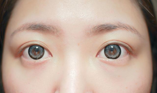 雙眼after